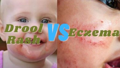 Photo of Drool rash vs Eczema